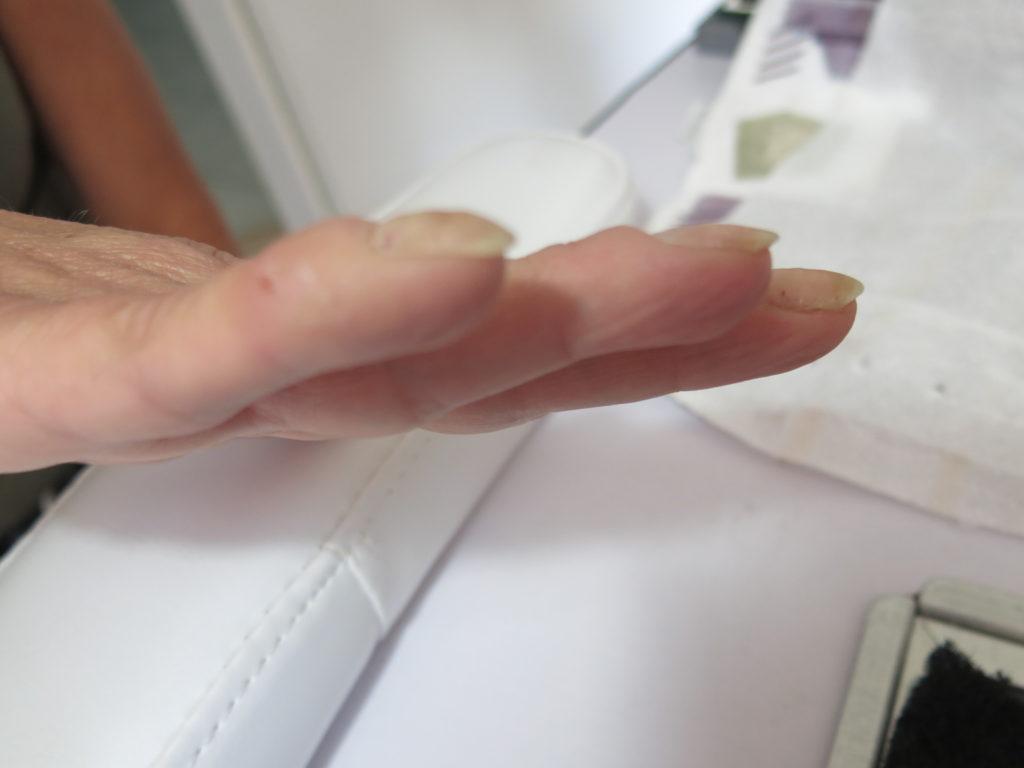 ongles très bombés