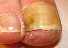 ongles très épais