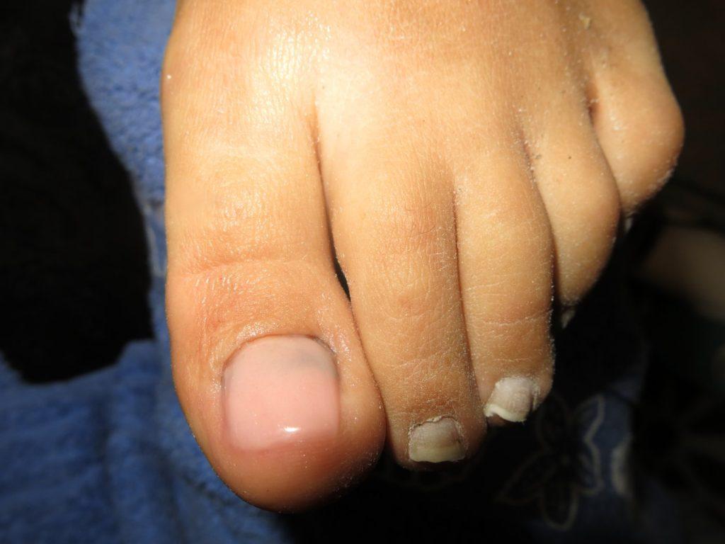 reconstruction ongle de pied en résine
