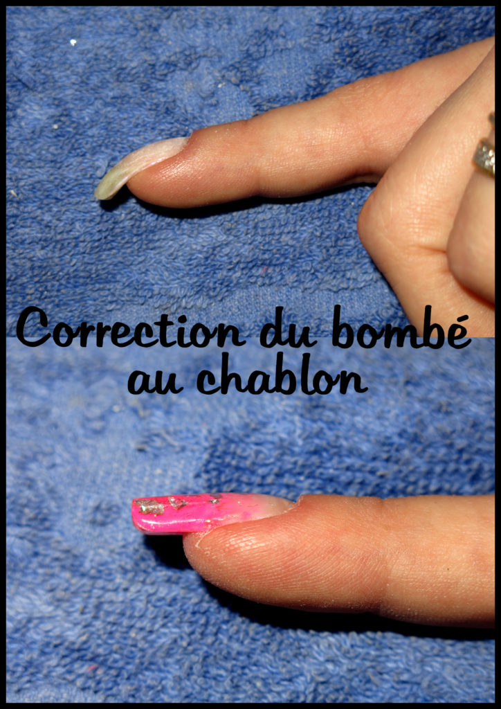 correction du bombé