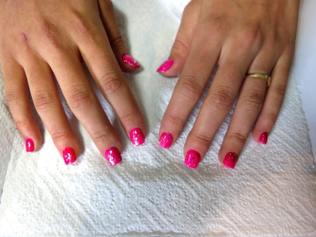 correction des ongles qui poussent vers le haut