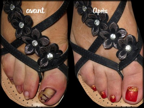 reconstruction ongles de pieds vernis permanent rouge et or